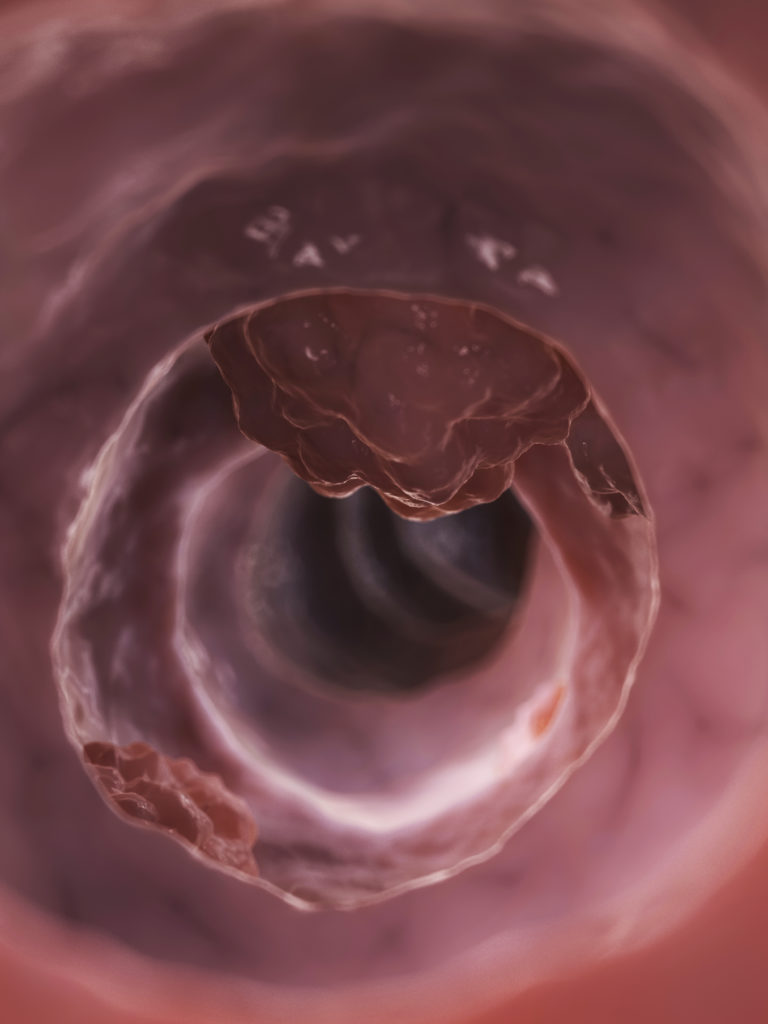 Colon and Rectal Polyps