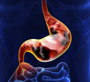 stomach cancer specialist los angeles