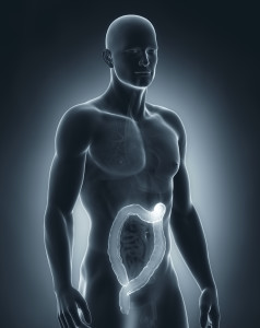 ulcerative colitis specialist beverly hills