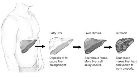Fatty Liver GI Doctor Beverly Hills