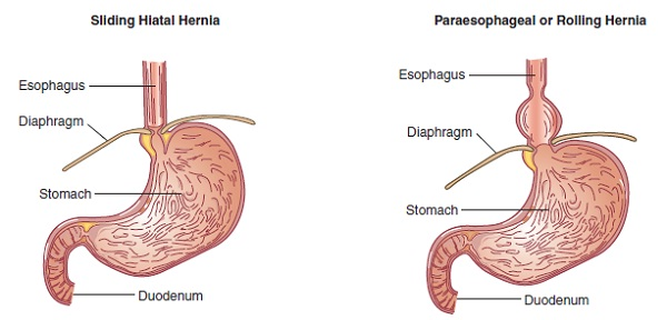 6 lifestyle changes that need to be made with hiatal hernia